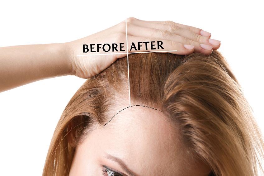 Menopausa - 5 modi infallibili per fermare la caduta dei capelli ... c3e1acaa83df